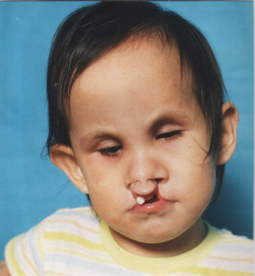 Cleft Palate Before And After Before; after cleft lip